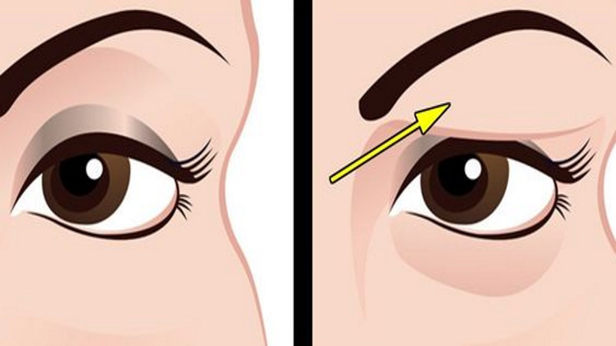 Give an instant lift to your eyelids