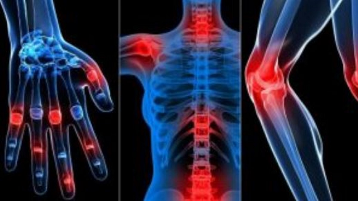 Here's how to heal Dreadful Rheumatism naturally