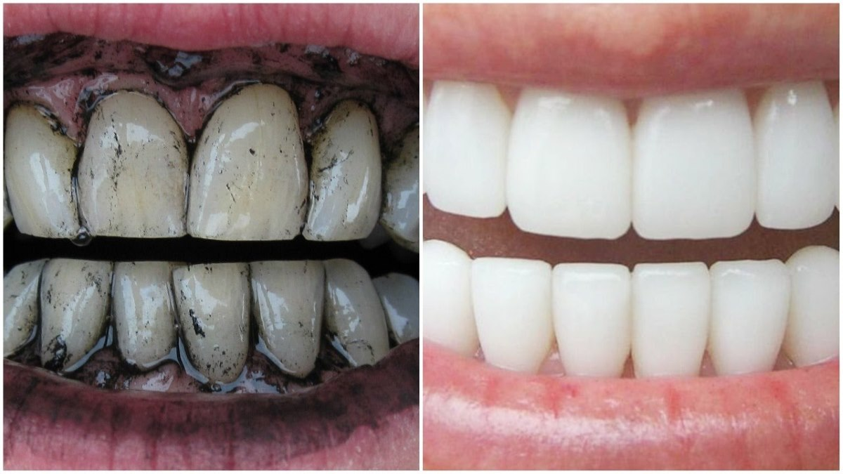 This is an Efficient Homemade toothpaste Recipe For a Whitening Teeth