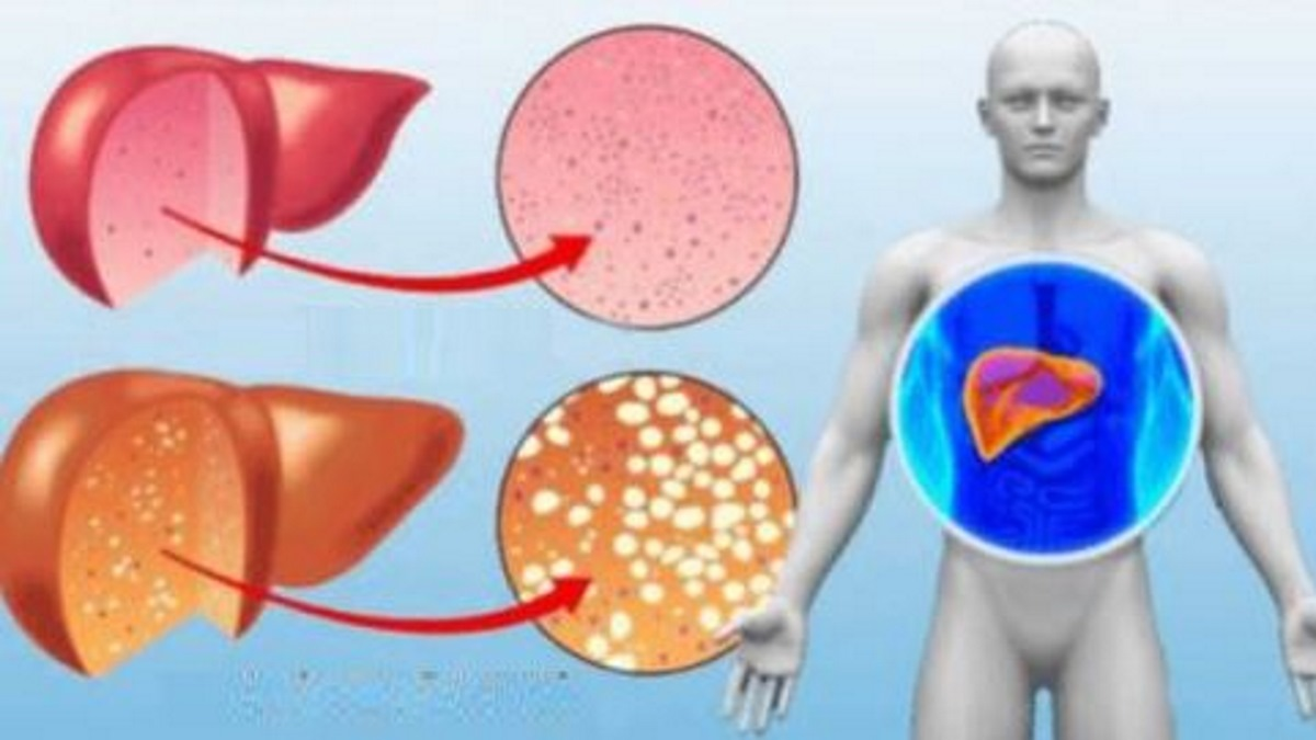 Toxic liver: 7 Warning signs you should never ignore